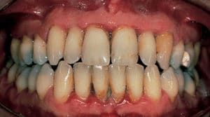 how to prevent hole in gums