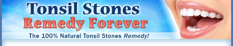Best Tonsil Stone Removal guide, how to get rid of tonsil stone