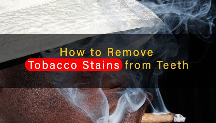 How to Remove Tobacco Stains From Teeth Instantly